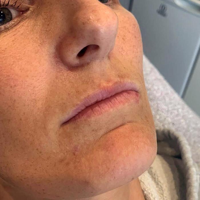 Lip Fillers Kerrie Lynch Aesthetics